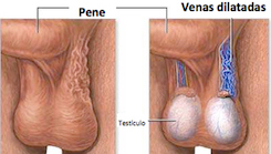 varicocele_microquirurgico