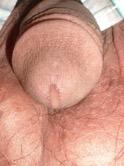 clamidia-marco-cosentino