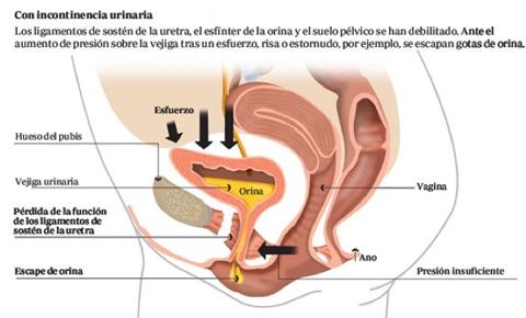 incontinencia urinaria de esfuerzo causas