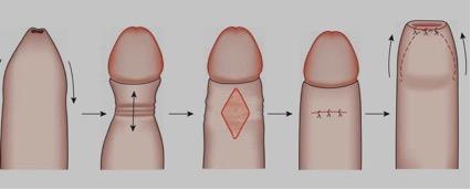 fimosis linear unit el adulto tratamiento